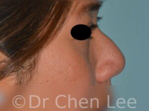 Rhinoplastie non-chirurgicale avant après injection du nez photo profil droite #03