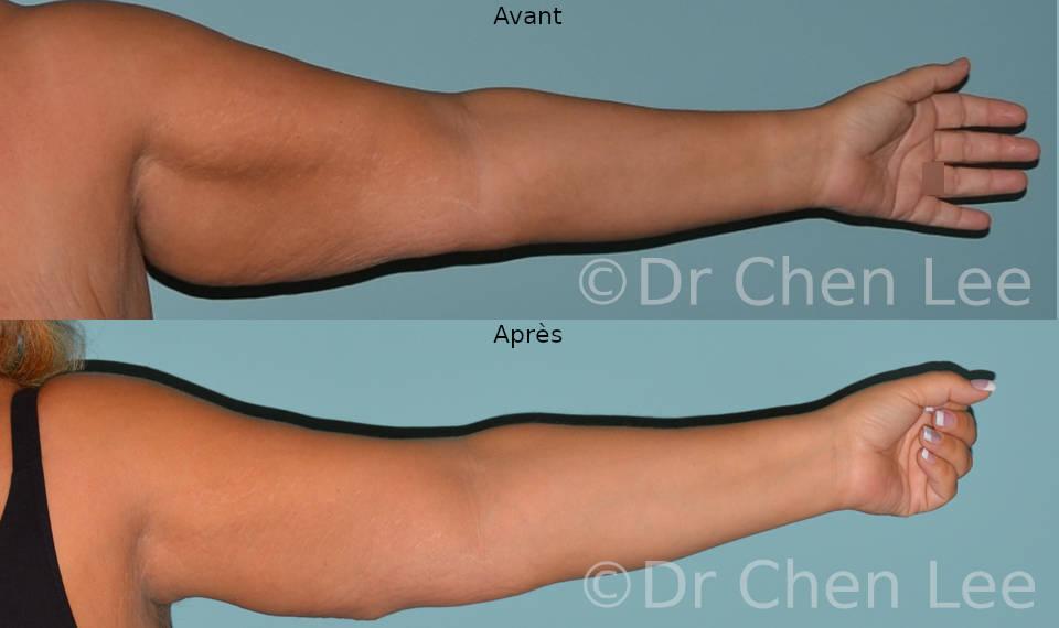 Lifting des bras avant après brachioplastie photo face #04