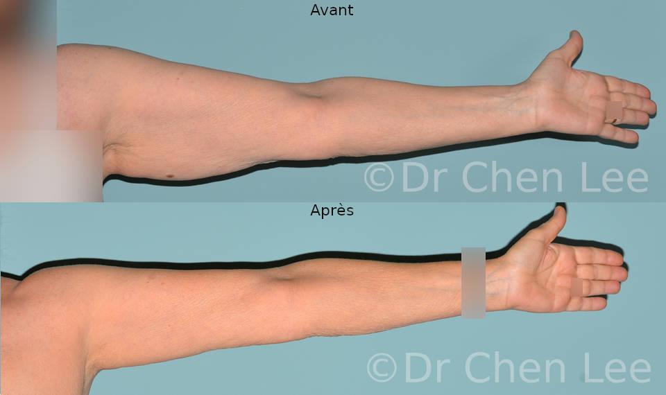 Lifting des bras avant après brachioplastie photo face #01