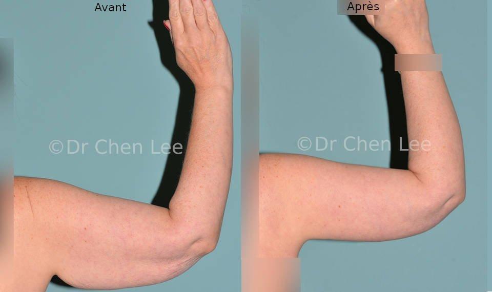 Lifting des bras avant après brachioplastie photo flex #03