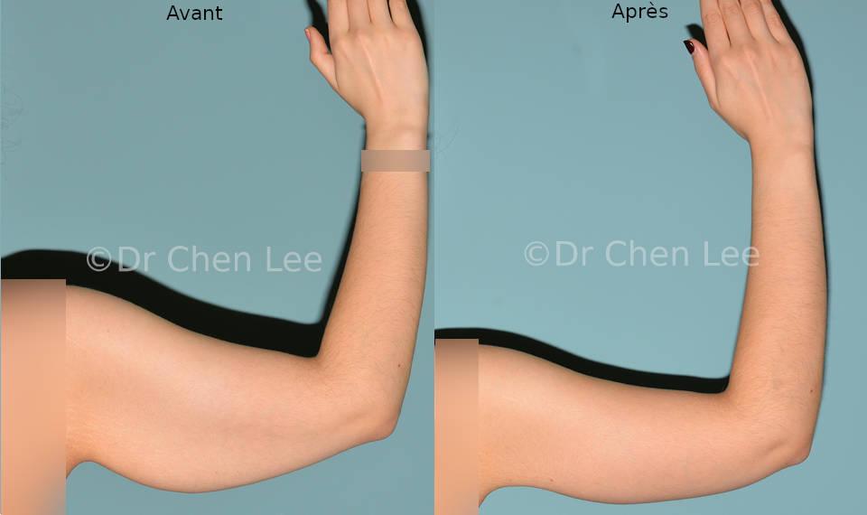 Lifting des bras avant après brachioplastie photo flex #02
