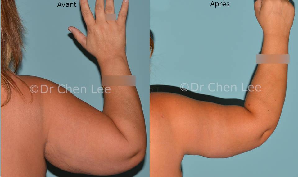 Lifting des bras avant après brachioplastie photo flex #04