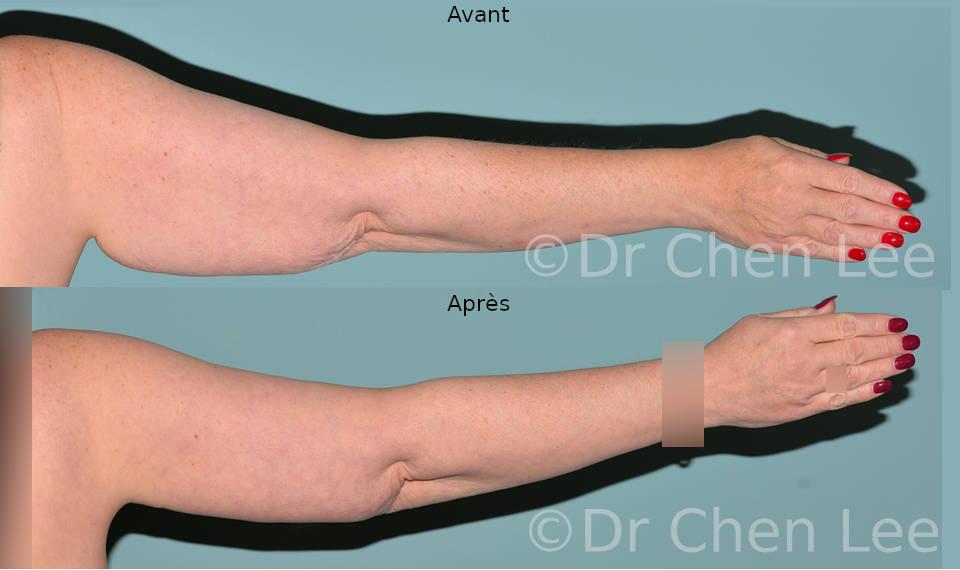 Lifting des bras avant après brachioplastie photo #03