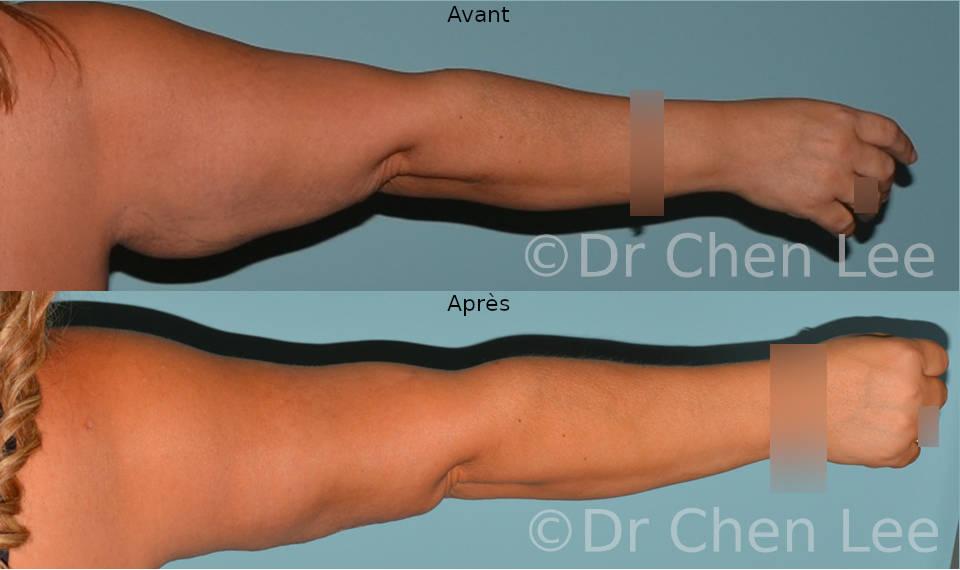 Lifting des bras avant après brachioplastie photo #04