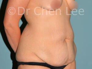 Abdominoplastie avant après redrapage abdomen photo oblique droite #07