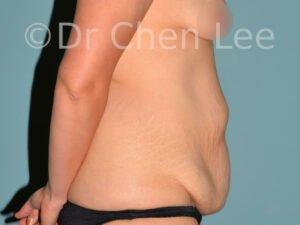 Abdominoplastie avant après redrapage abdomen photo côté droit #07