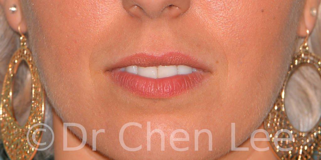 Augmentation des lèvres avant après injection de remplisseur d'acide hyaluronique photo face #04