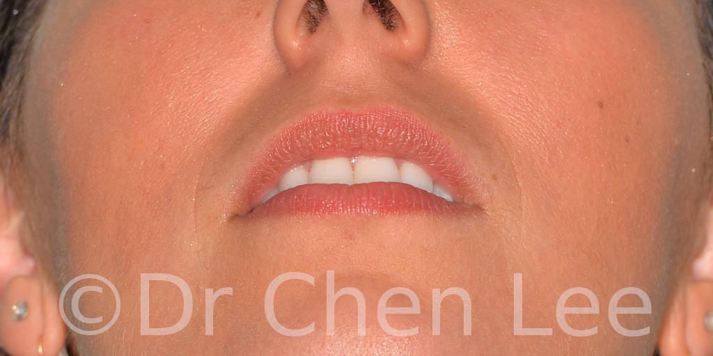 Augmentation des lèvres avant après injection de remplisseur d'acide hyaluronique photo face haut #04