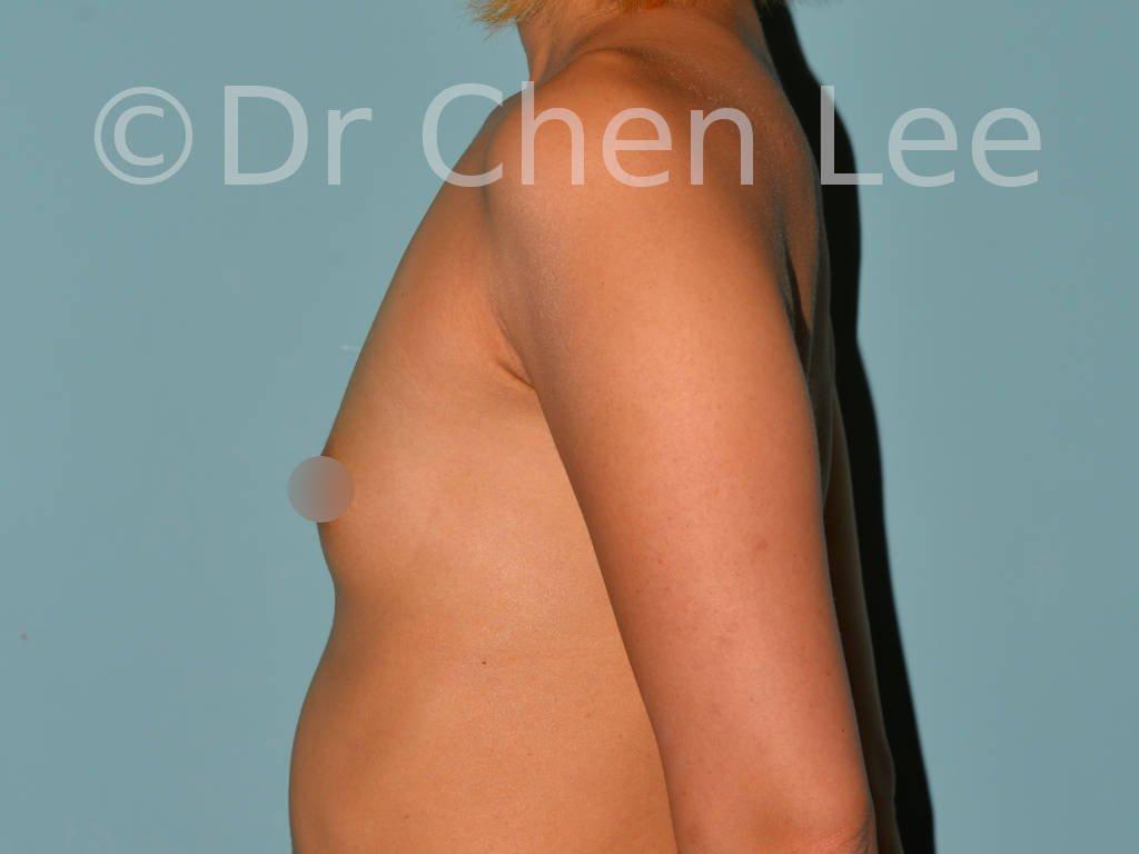 Augmentation mammaire asiatique avant après implants photo côté gauche #03