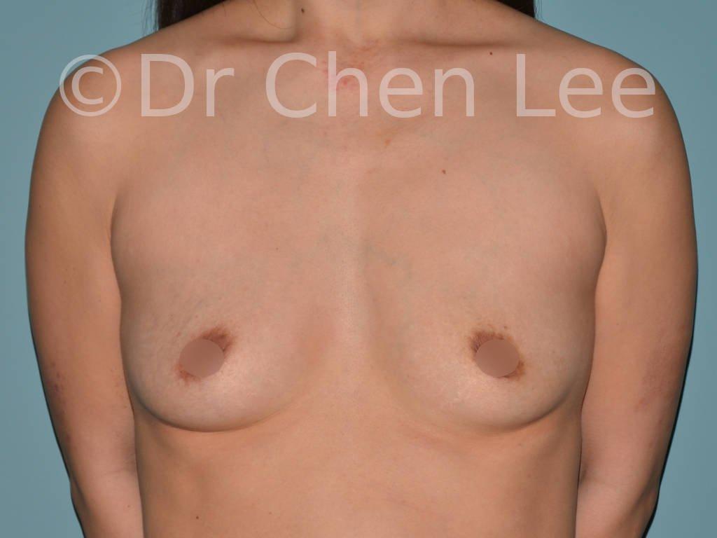 Augmentation mammaire asiatique avant après implants photo face #05