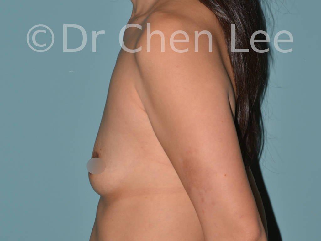 Augmentation mammaire asiatique avant après implants photo côté gauche #05