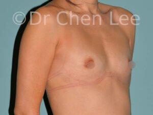 Augmentation mammaire asiatique avant après implants photo oblique droite #10
