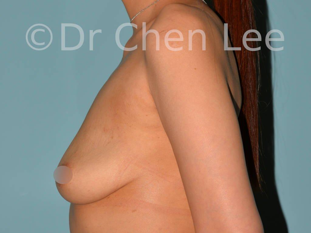 Augmentation mammaire asiatique avant après implants photo côté gauche #13