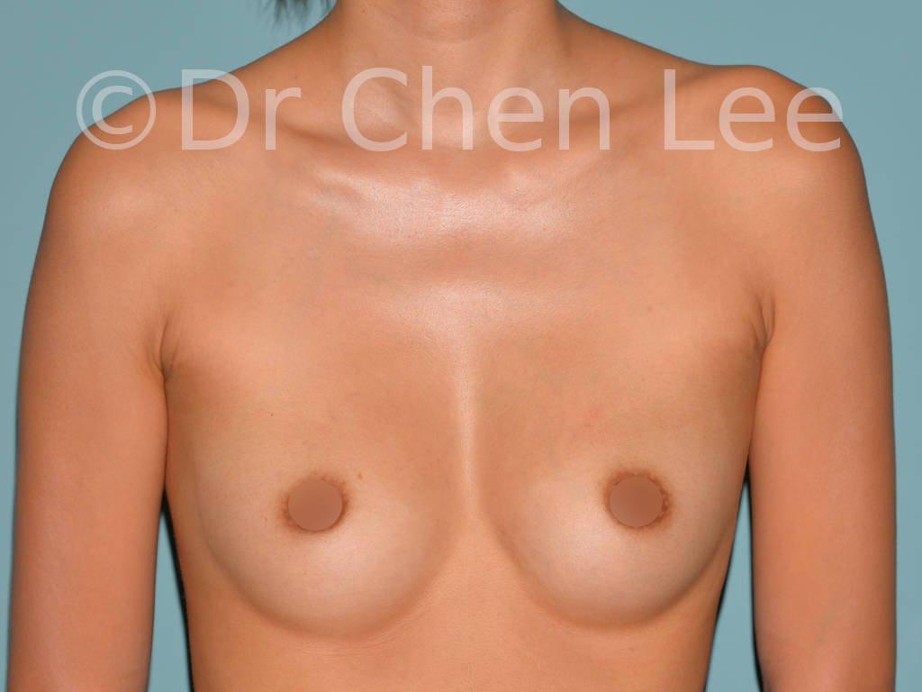 Augmentation mammaire asiatique avant après implants photo face #21