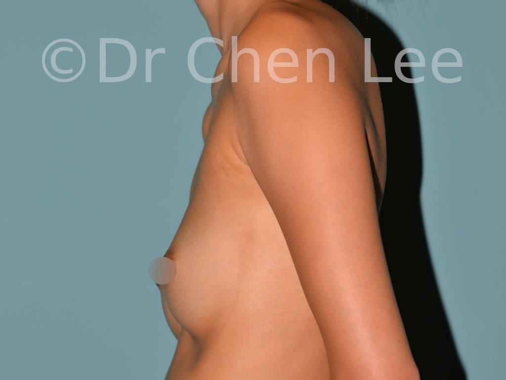 Augmentation mammaire asiatique avant après implants photo côté gauche #21