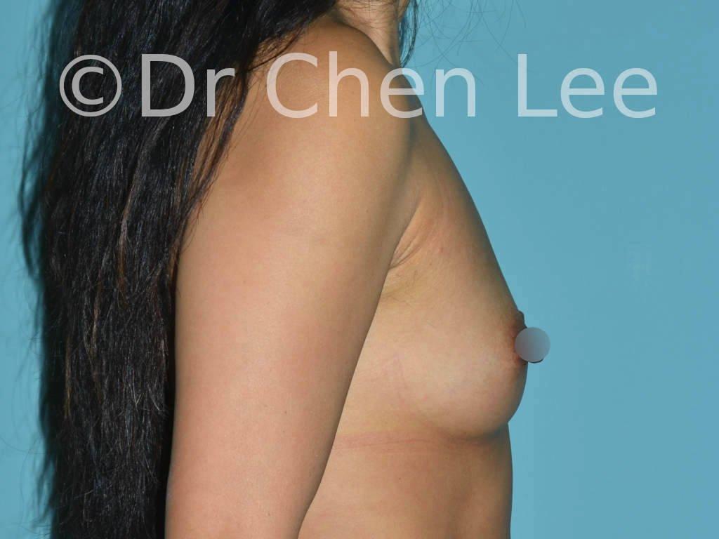 Augmentation mammaire asiatique avant après implants photo côté droit #22