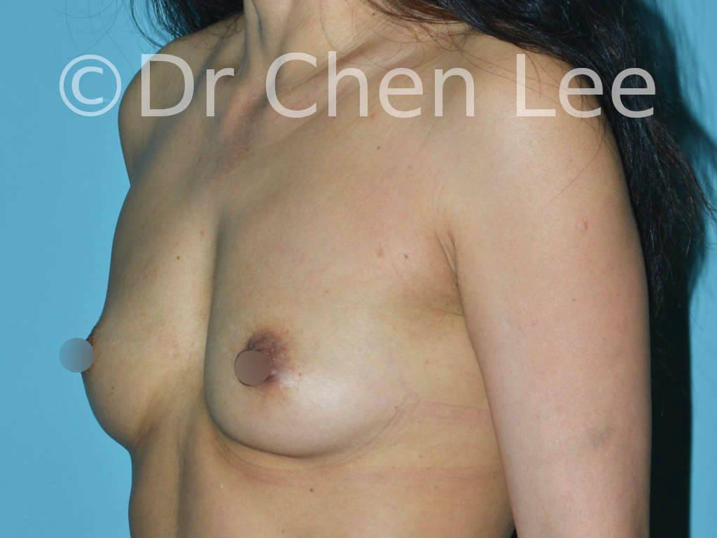 Augmentation mammaire asiatique avant après implants photo oblique gauche #22