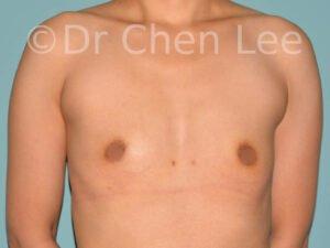 Augmentation mammaire asiatique avant après implants photo face #25