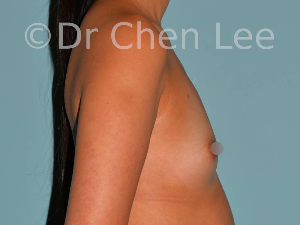 Augmentation mammaire asiatique avant après implants photo côté droit #27