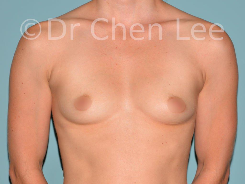 Augmentation mammaire avant après implants photo face #01