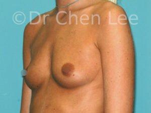 Augmentation mammaire avant après implants photo oblique gauche #40