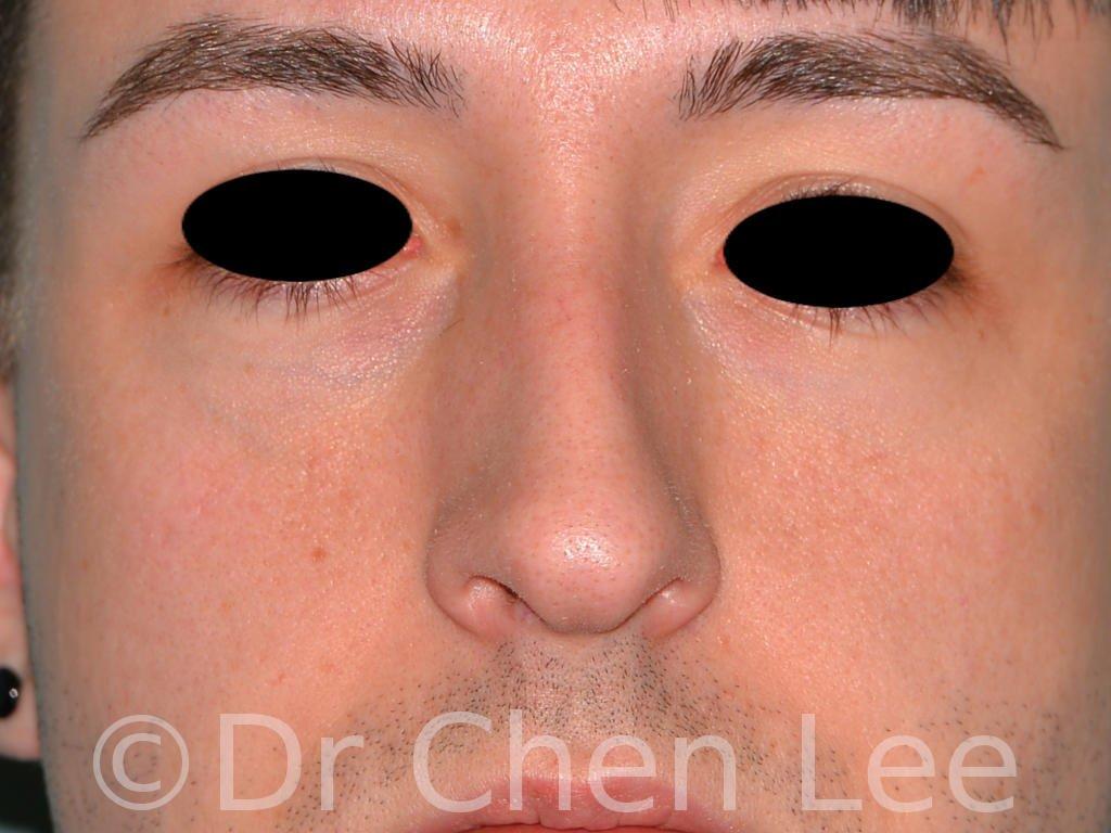Rhinoplastie avant après chirurgie du nez photo face #02
