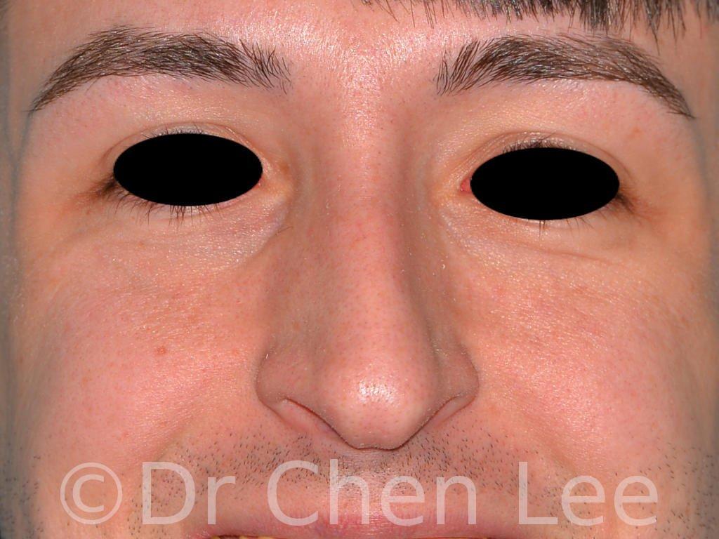Rhinoplastie avant après chirurgie du nez photo face sourie #02