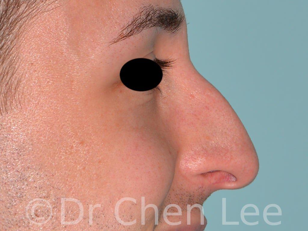 Rhinoplastie avant après chirurgie du nez photo profil droite sourie #02