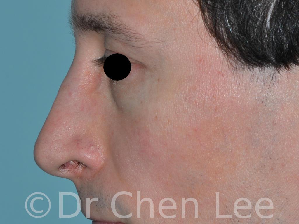 Rhinoplastie avant après chirurgie du nez photo profil gauche #05
