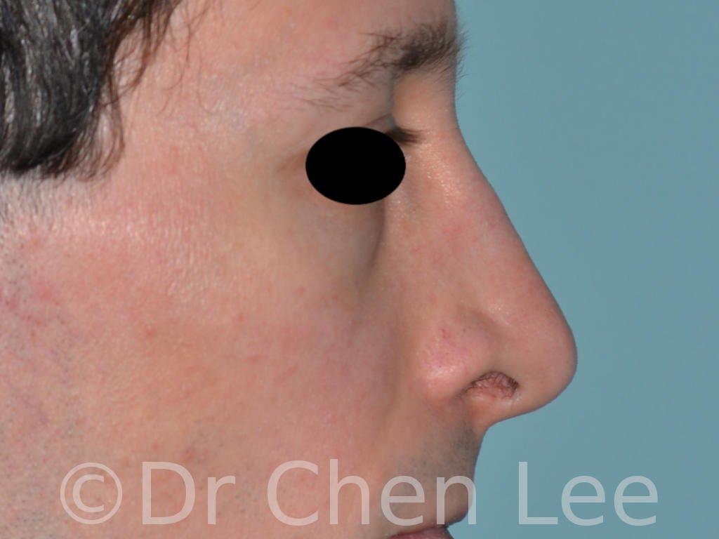 Rhinoplastie avant après chirurgie du nez photo profil droite #05