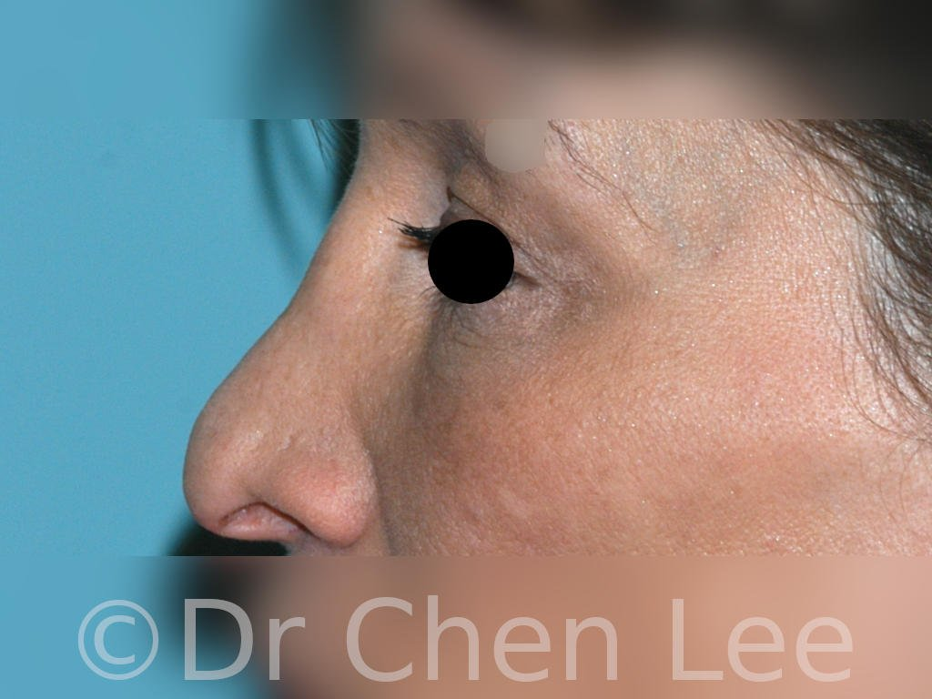 Rhinoplastie avant après chirurgie du nez photo profil gauche #06
