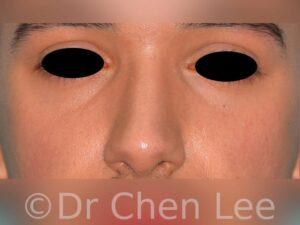 Rhinoplastie non-chirurgicale avant après injection du nez photo face #02