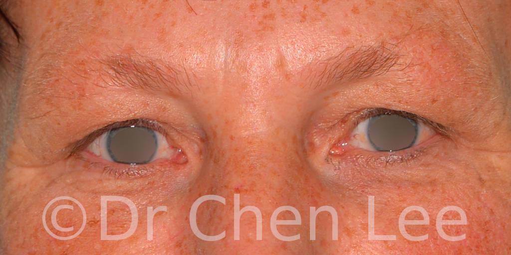 Chirurgie des paupières avant après blépharoplastie photo face #13