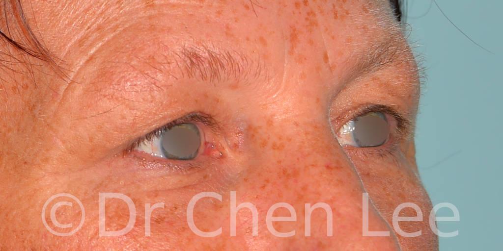 Chirurgie des paupières avant après blépharoplastie photo oblique droite #13