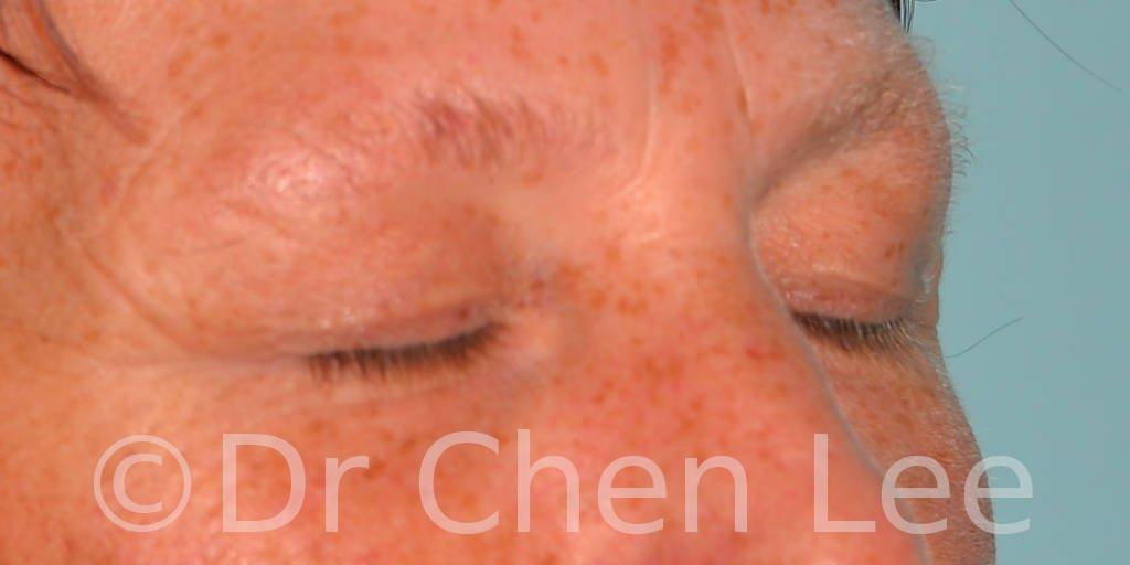 Chirurgie des paupières avant après blépharoplastie photo oblique droite fermée #13