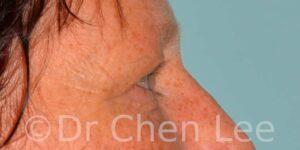 Chirurgie des paupières avant après blépharoplastie photo côté droite #13