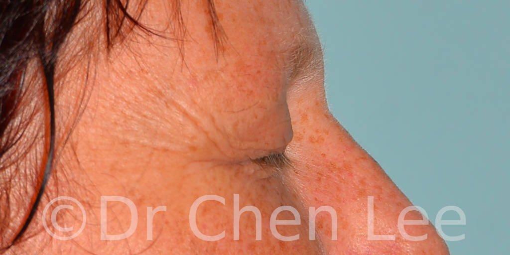 Chirurgie des paupières avant après blépharoplastie photo côté droite fermée #13
