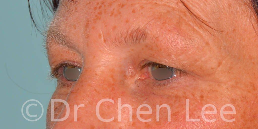 Chirurgie des paupières avant après blépharoplastie photo oblique gauche #13