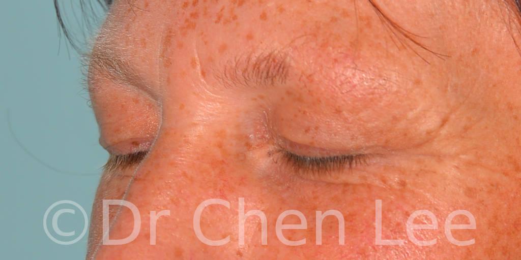 Chirurgie des paupières avant après blépharoplastie photo oblique gauche fermée #13