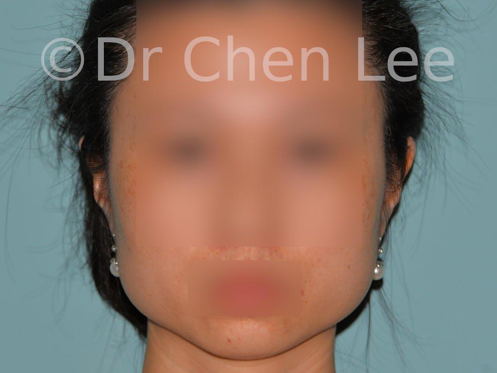 Réduction mâchoire avant après non-chirurgicale Botox injection des muscles masséters photo face #01